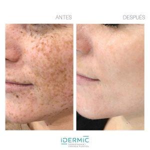 Eliminar manchas de la piel causadas por la edad o el sol con luz pulsada.