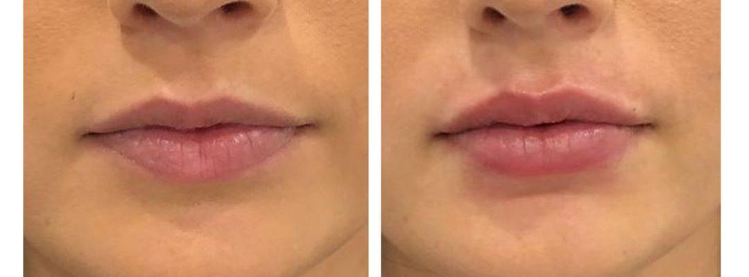 Antes y después de un perfilado de labios con ácido hialurónico
