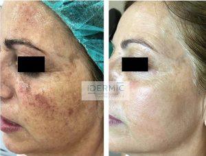 fotorejuvenecimiento facial con luz pulsada. Elimina las manchas de la piel