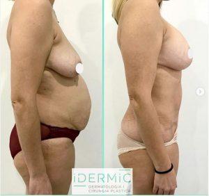 Mommy Makeover. Antes y después. Clínica Idermic de Terrassa